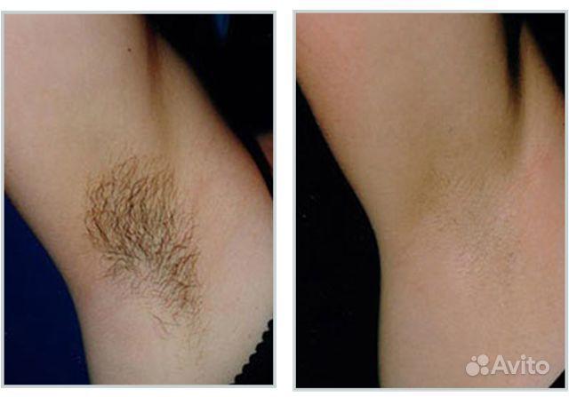 Уход за волосами что делать если волосы выпадают